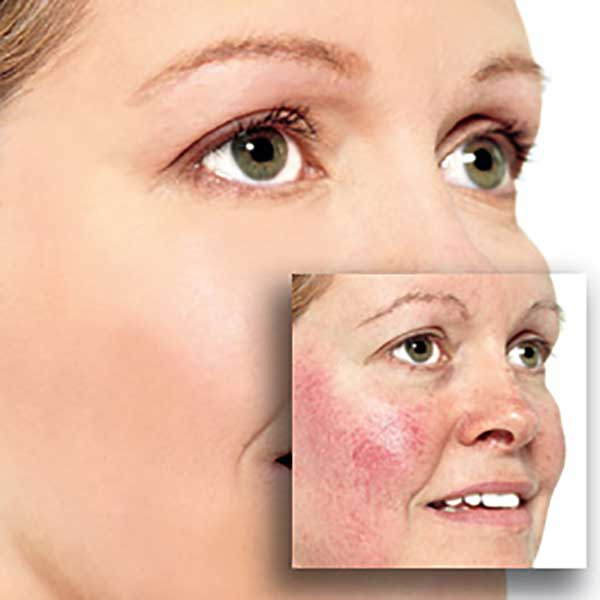 Sensitive / Rosacea